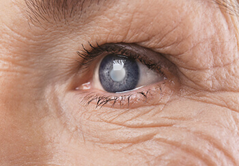 Closeup of a Cataract in an Eye
