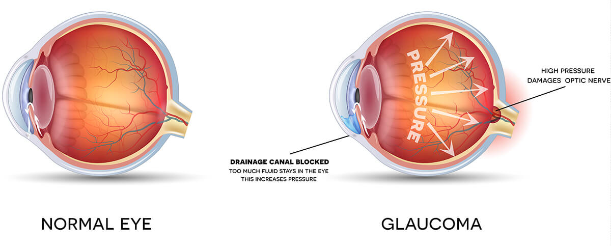 Chart Showing a Healthy Eye vs One That Has Glaucoma