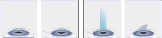 Visually Showing the Steps of LASIK
